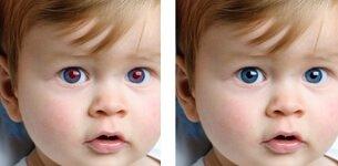 Bildbearbeitung rote Augen